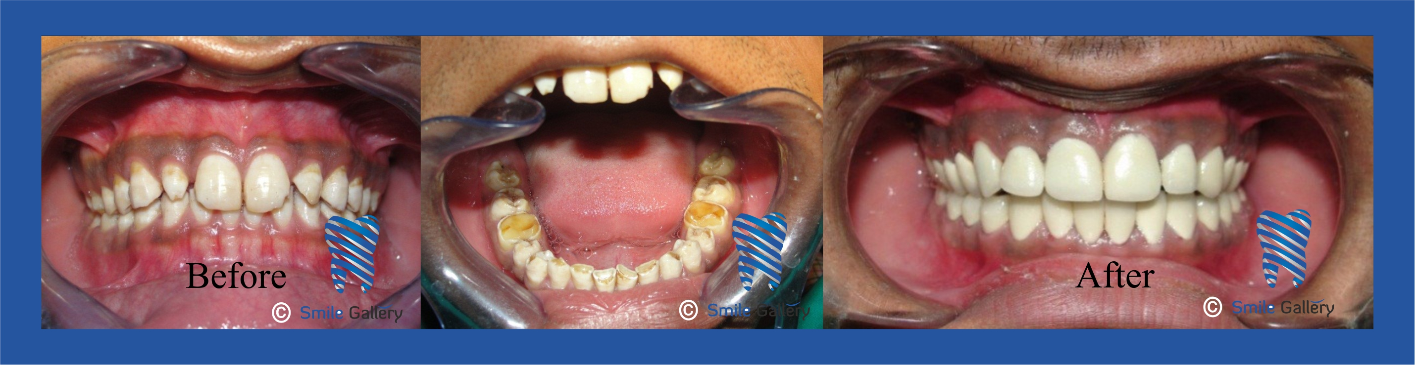 smile-gallery-Fullmouth Rehab