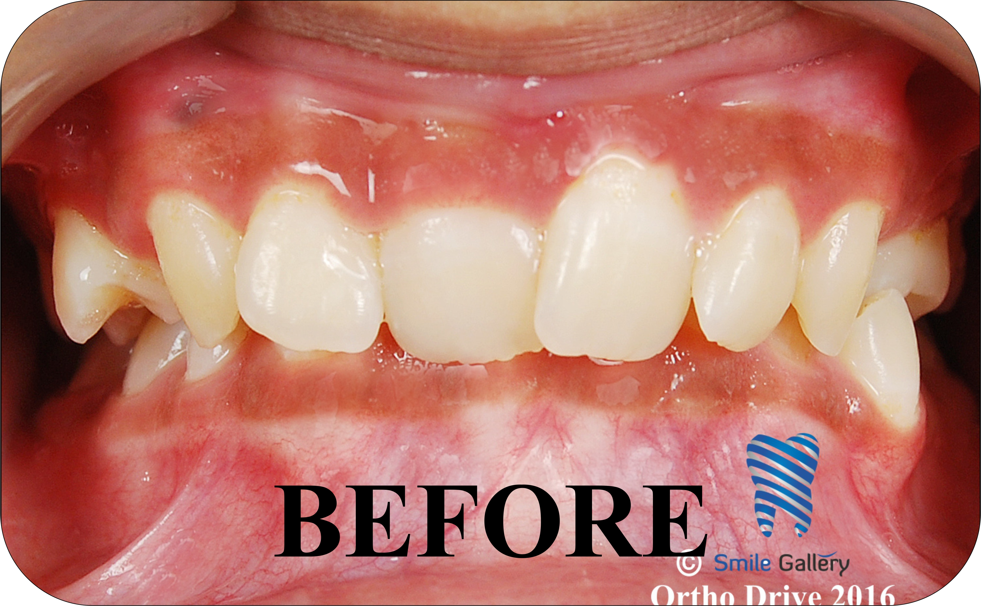 smile-gallery-Orthodontics Before After 1a