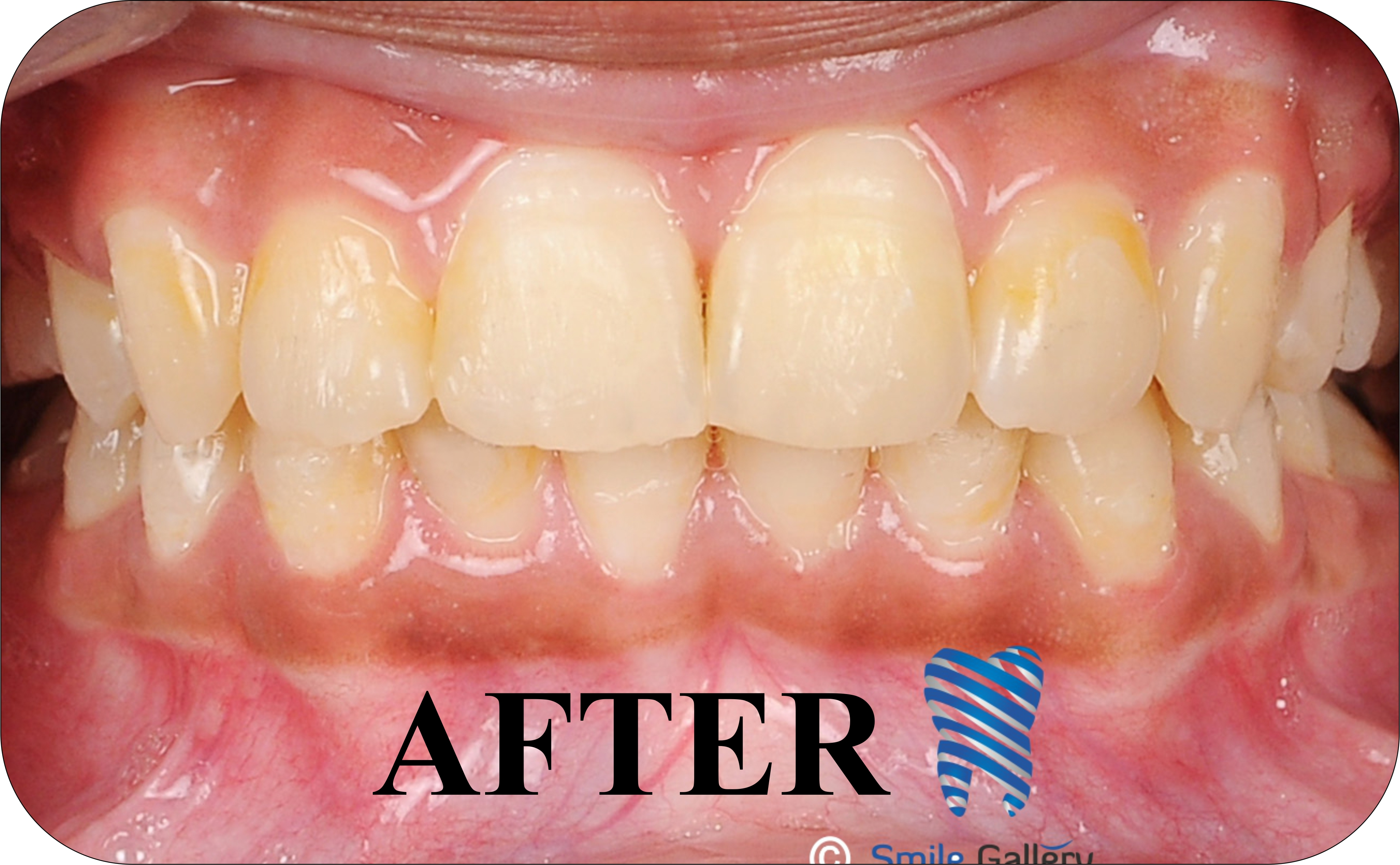 smile-gallery-Orthodontics Before After 1b