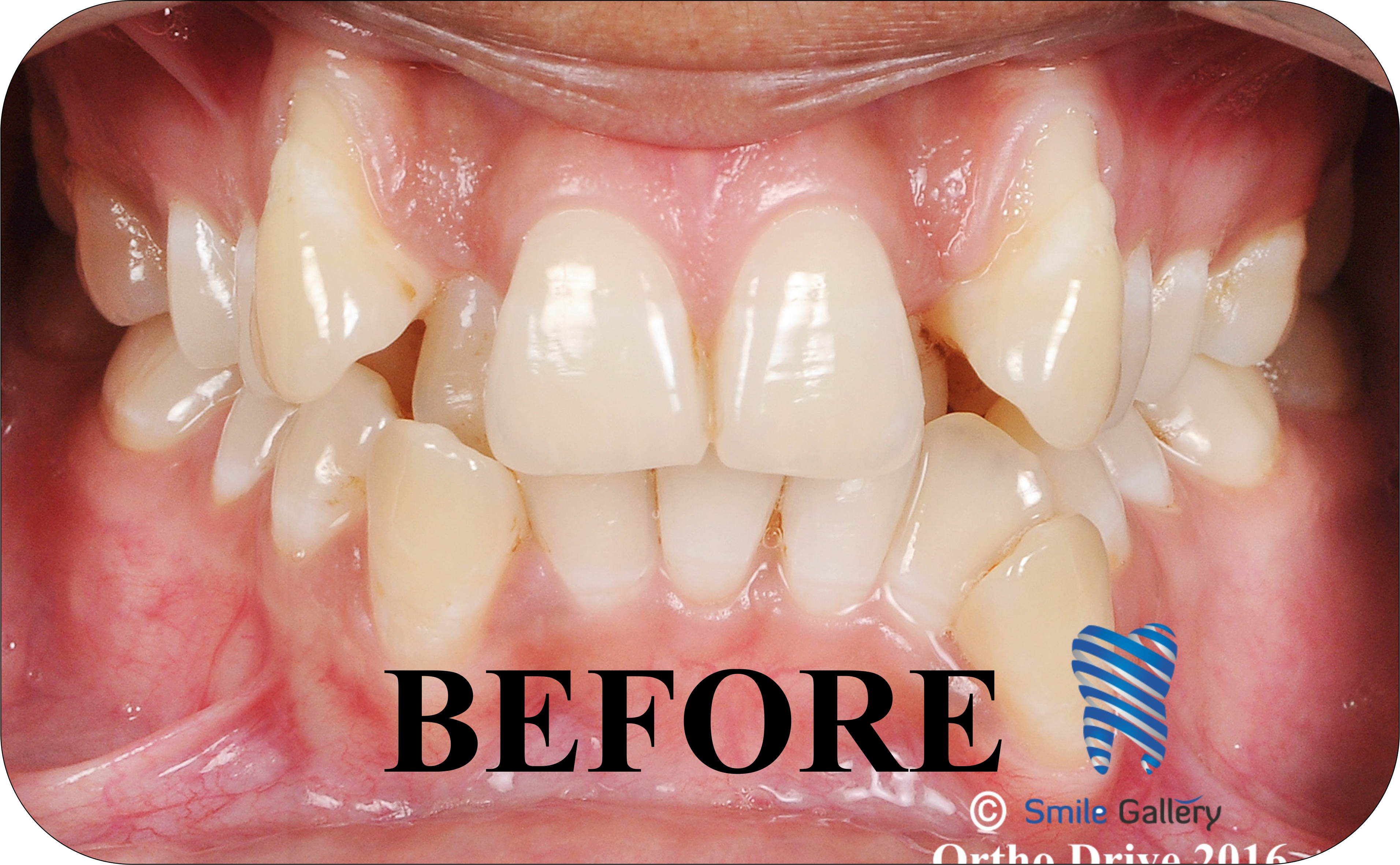 smile-gallery-Orthodontics Before After 2a