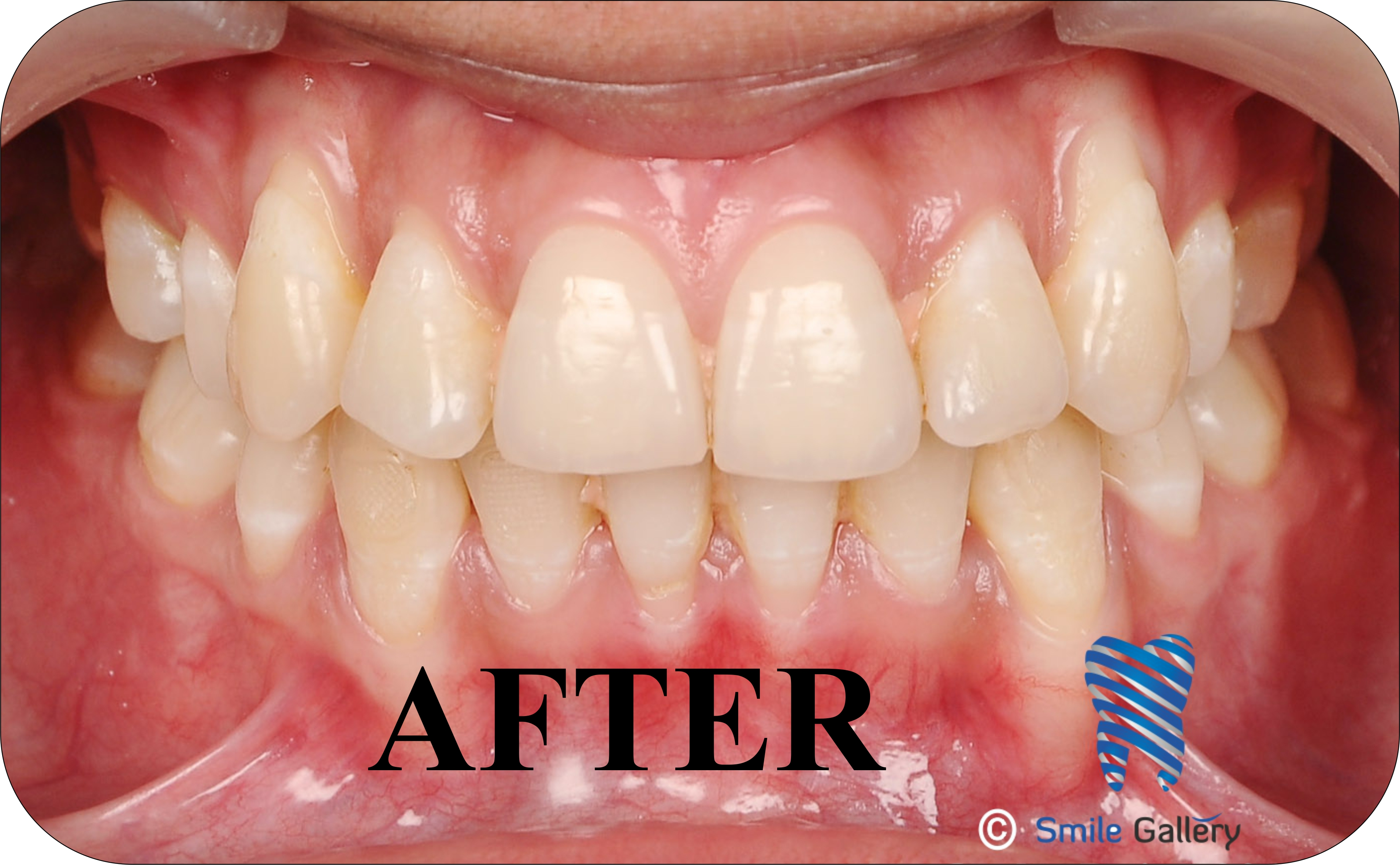 smile-gallery-Orthodontics Before After 2b