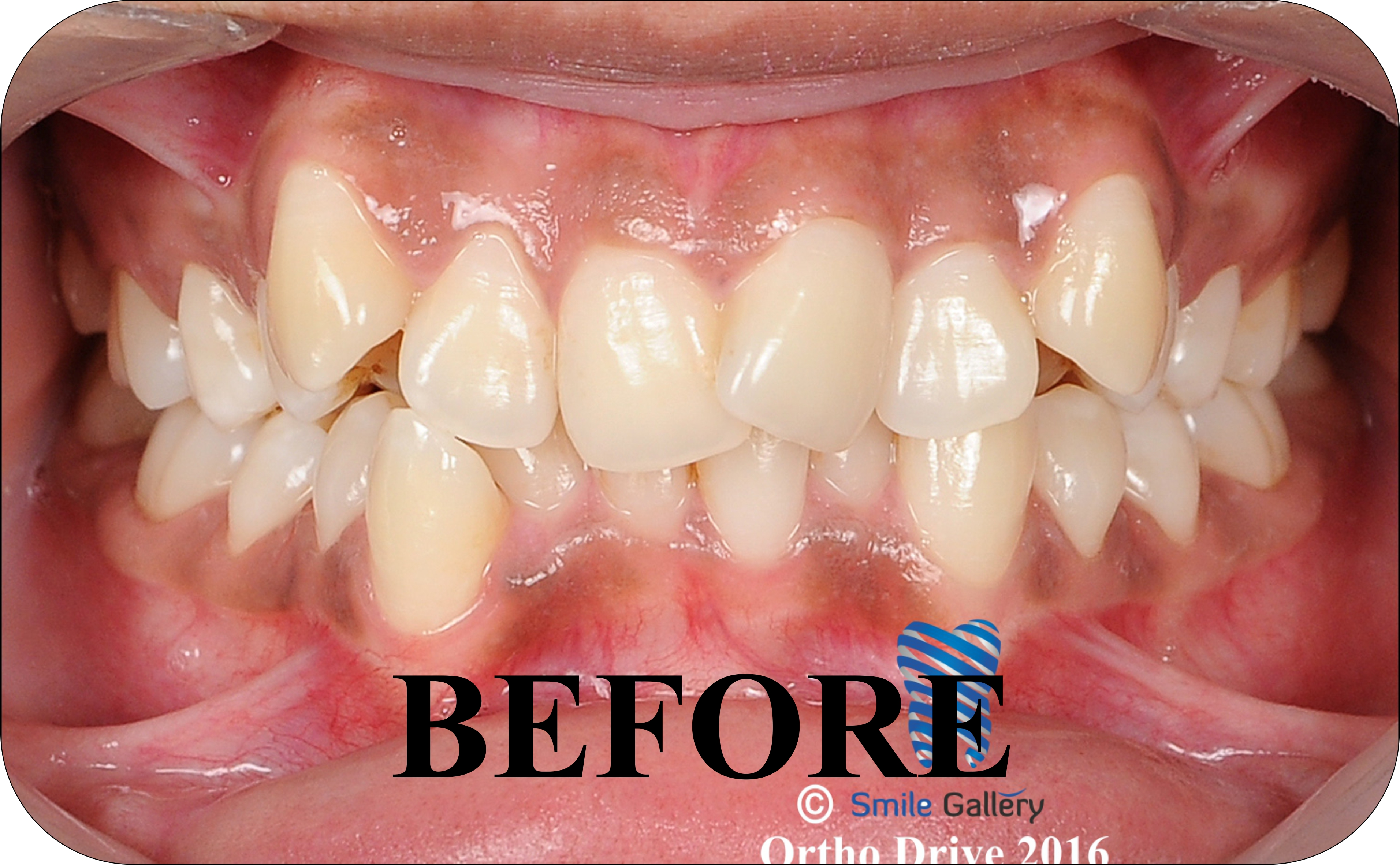 smile-gallery-Orthodontics Before After 3a