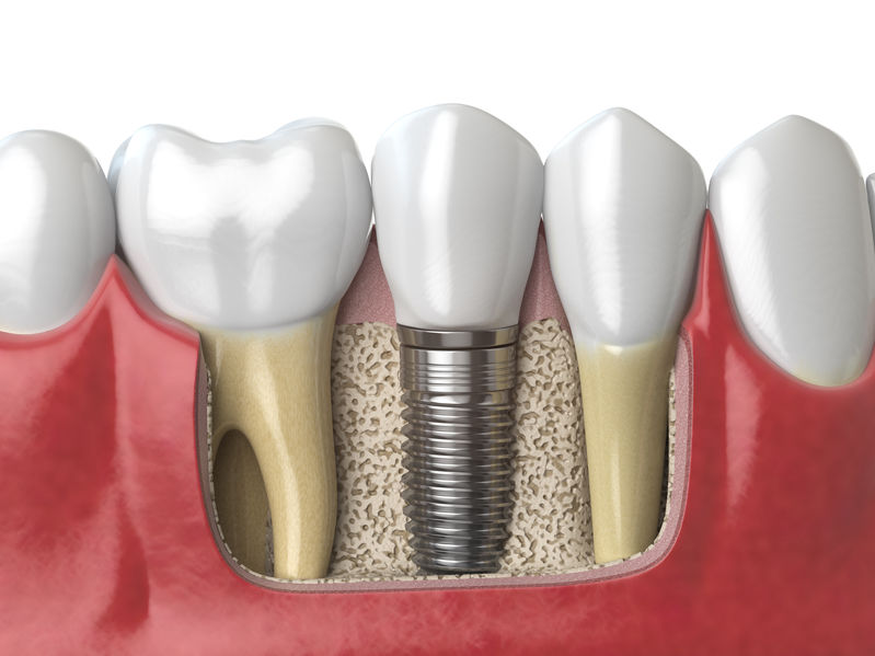 gallery-smile-Anatomy of healthy teeth and tooth dental implant in human dentu