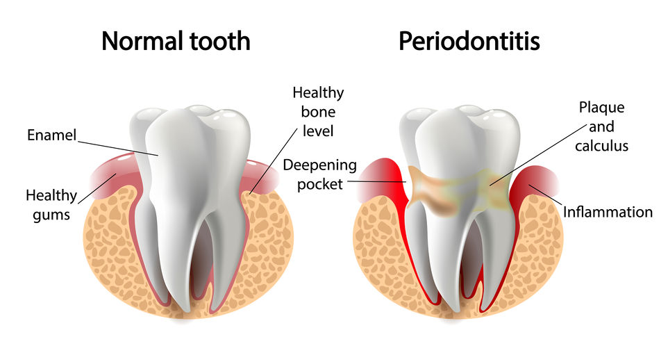 smile-gallery-vector image tooth Periodontitis disease