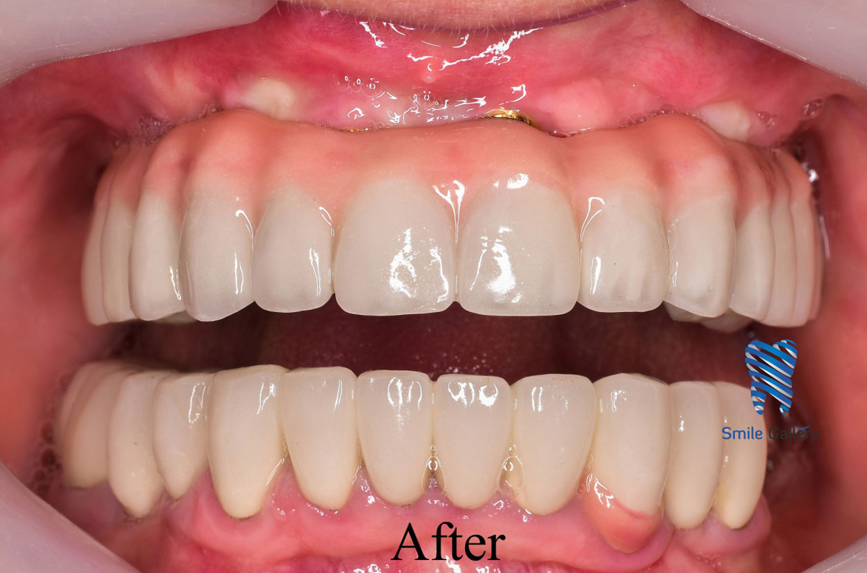 smile-gallery-Implant-After
