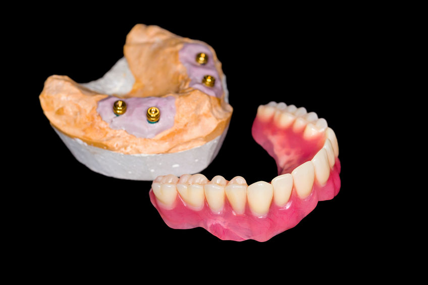 smile-gallery-Removable denture