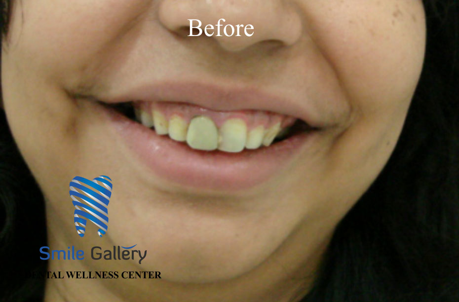 smile-gallery-Smile-DSD2-before